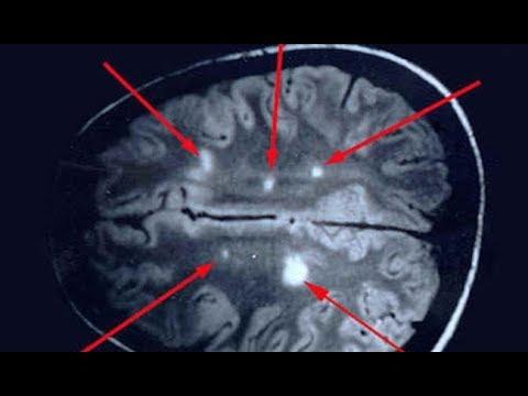 13Рассеянный склероз.jpg