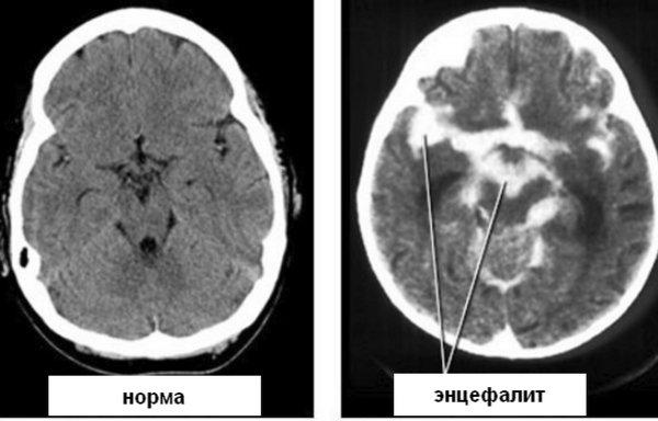 Результат МРТ головного мозга – диагноз клещевого энцефалита