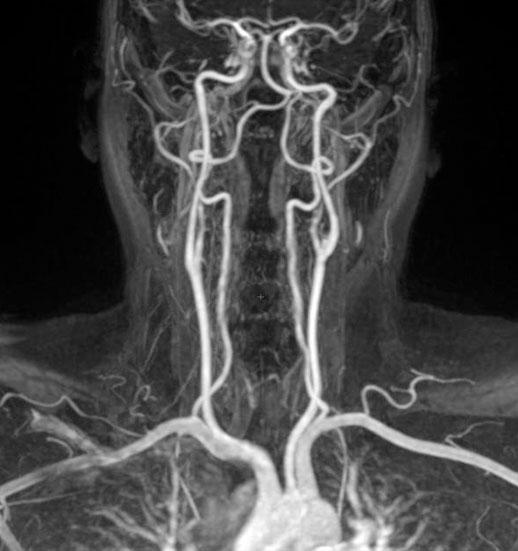 Контрастная ангиография сосудов головного мозга