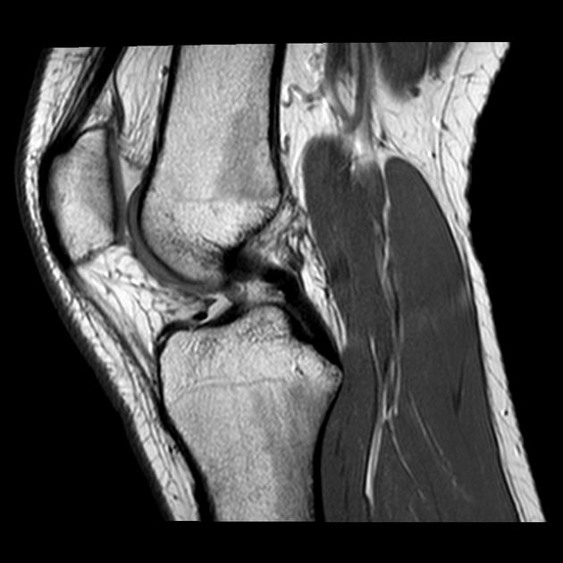 МРТ коленного сустава в норме