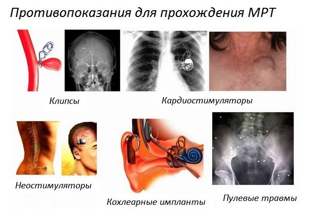 Перечень противопоказаний к проведению МРТ