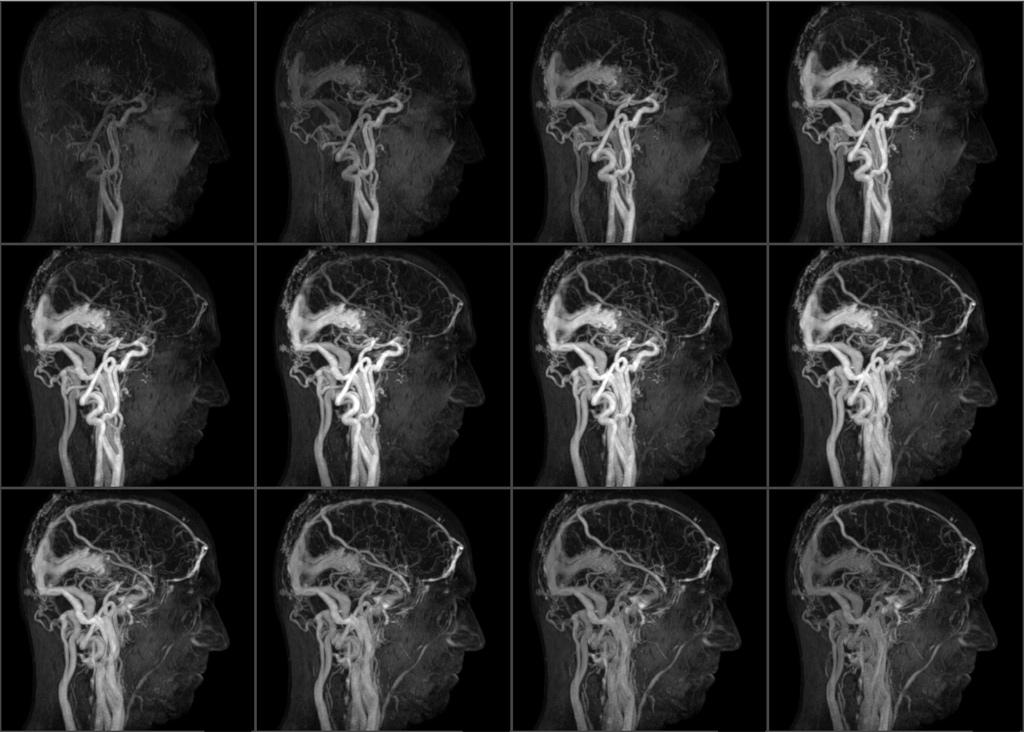 МР ангиограмма с болюсным введением контраста