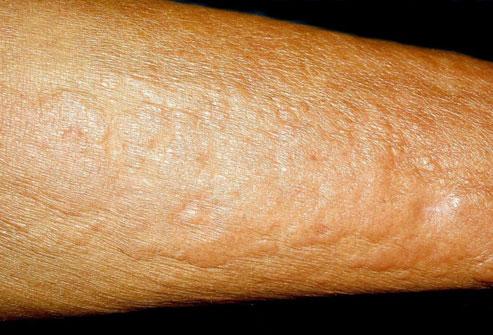 Поражение кожи при нефрогенном системном фиброзе