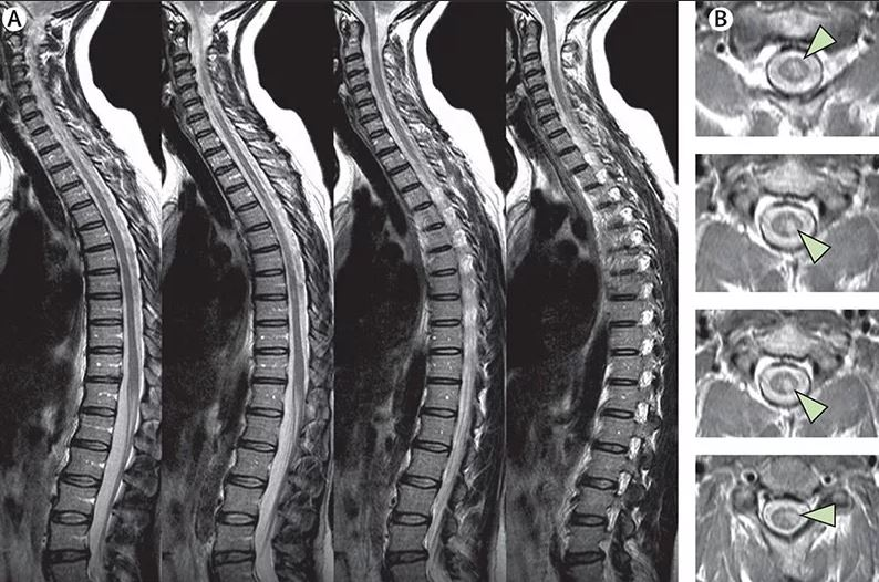 МРТ спинного мозга