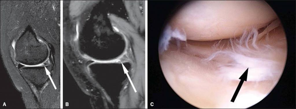 МРТ коленного сустава, разрыв мениска